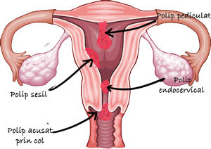 Polipii uterini