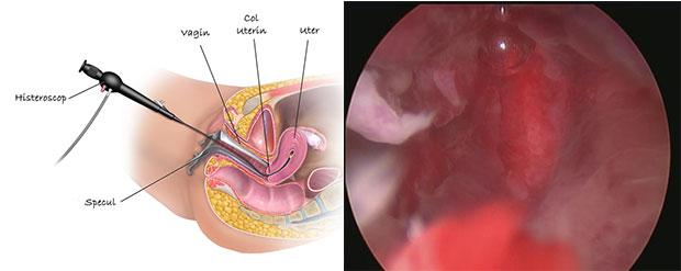pierderi de greutate polipi uterini
